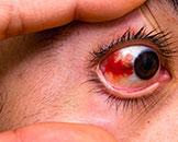 Accidentes oculares
